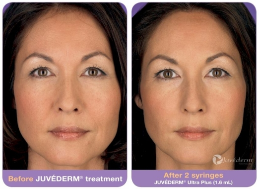 JUVÉDERM Before and After 1