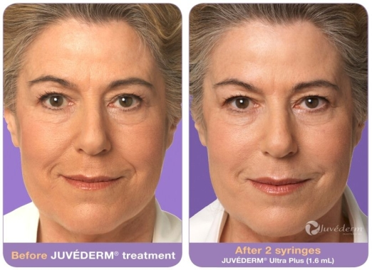 JUVÉDERM Before and After 2