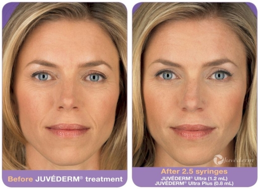 JUVÉDERM Before and After 3