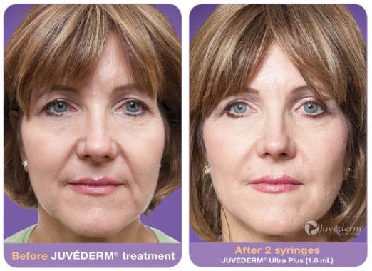 JUVÉDERM Before and After 4