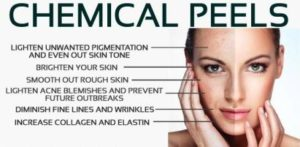 Medical Peels in San Diego, CA