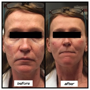 juvederm-voluma-san-diego-north-county